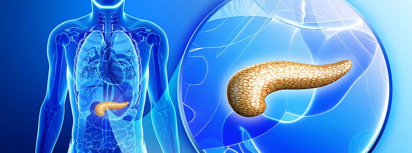 with pancreatic cancer pankreas kanseri 001 intergeomed