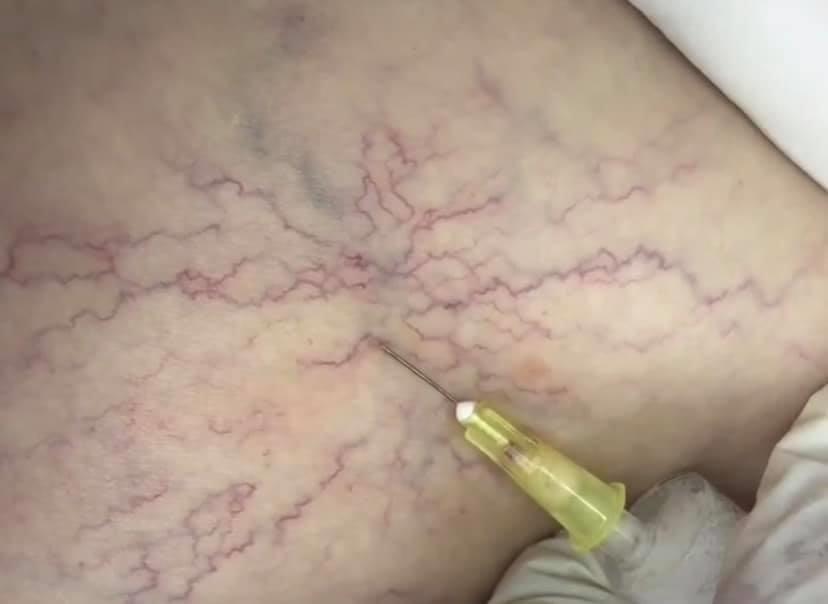 Склеротерапия -безоперационный метод лечения варикозного расширения вен varis tedavisi
