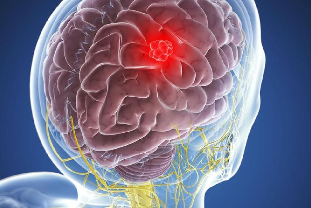 Что такое менингиома? beyin tim  r