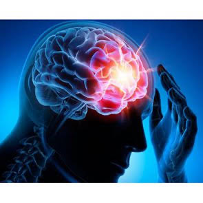 Epilepsy is a disease of the central nervous system (neurological) epilepsi 01